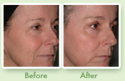 South Island Medical Aesthetics Profractional Laser